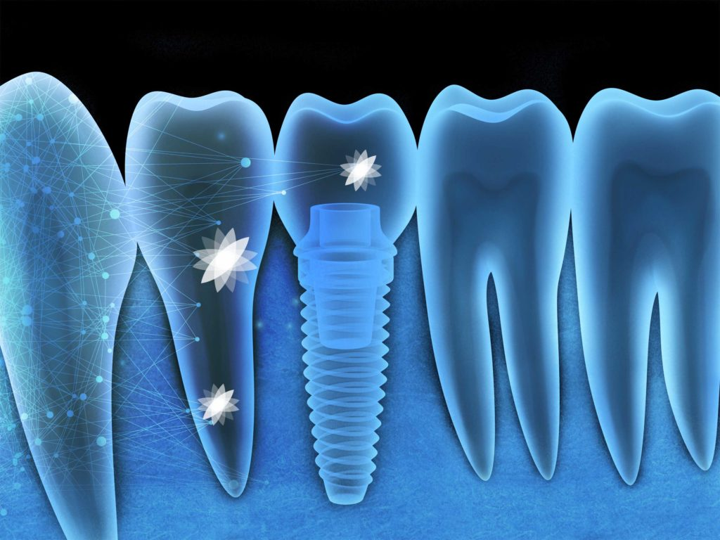 Tooth human implant x-ray (done in 3d, graphics)